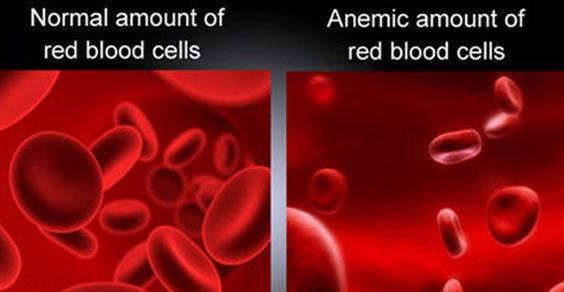 Anemia: 10 remedios naturales para la deficiencia de hierro