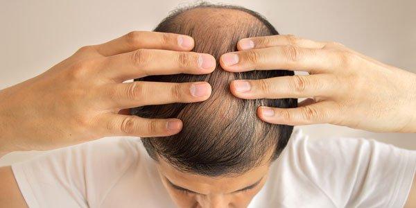Alopecia: cómo tratarla de manera efectiva y natural