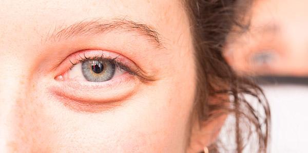 Bolsas para los ojos: causas y cómo eliminarlas con remedios naturales