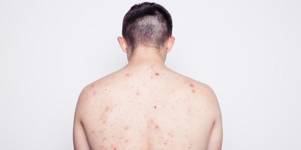 Espinillas en la espalda: causas y cuidados en el hogar