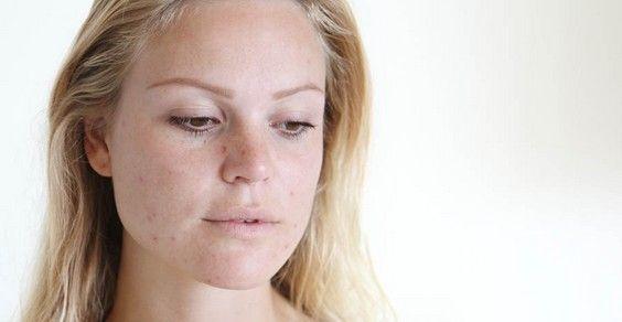 Manchas en la piel: 10 trucos y remedios naturales.