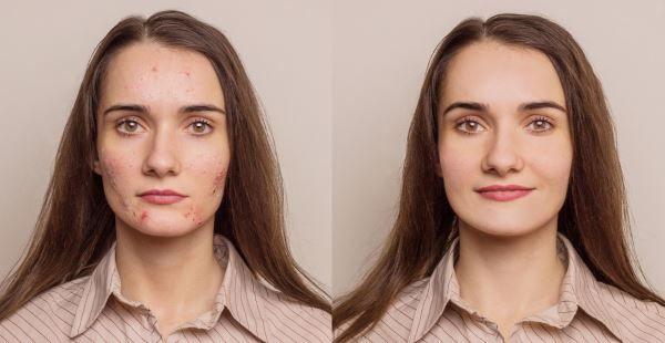 Manchas no rosto: 10 remédios naturais
